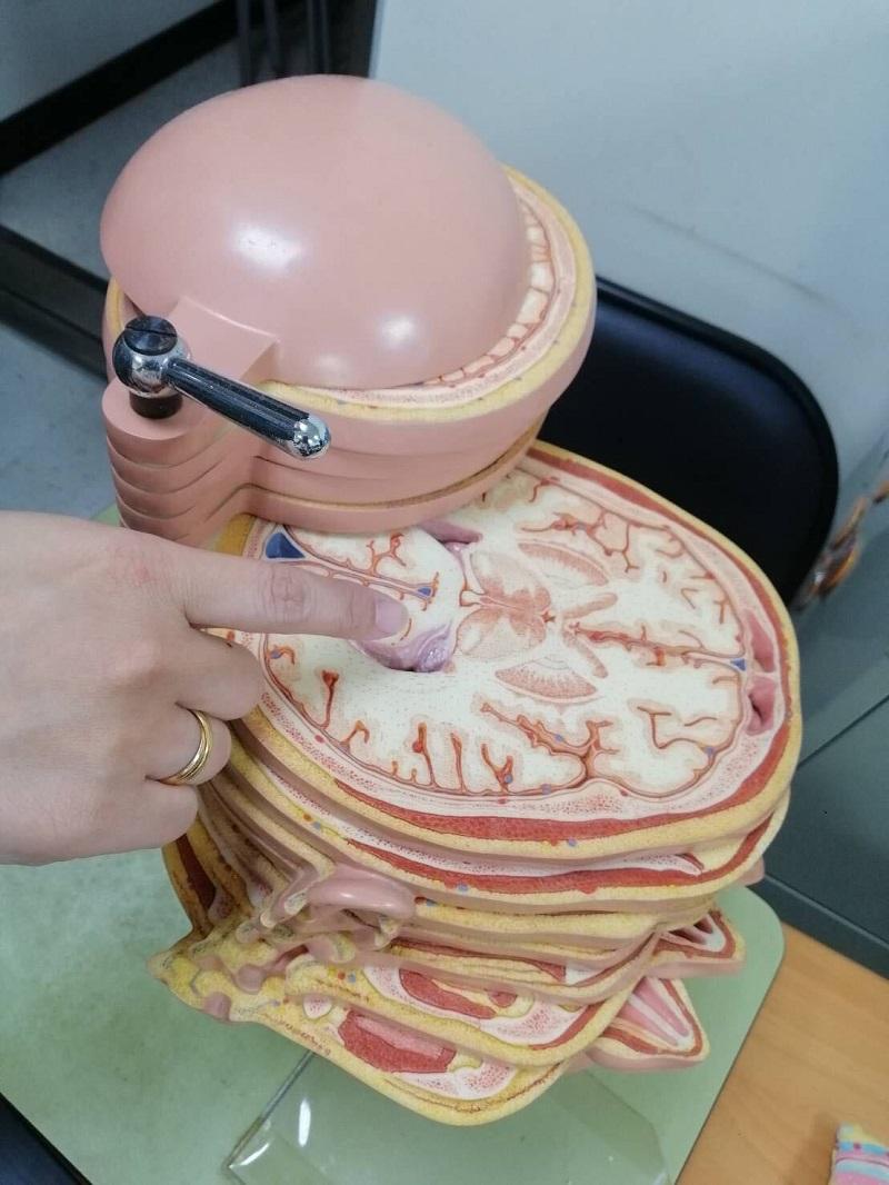 神經部呂明桂醫師|治療原發性震顫免開刀 神波刀讓八旬伯不再為顫抖所苦