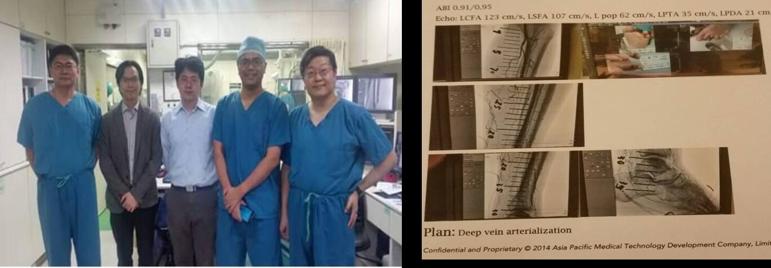 Completed the first case of East Asia, Taiwan, the world's eighth case of Deep vein arterialization