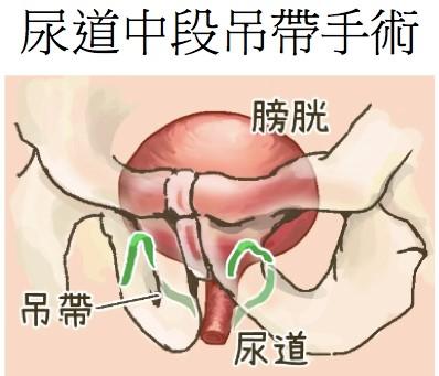 尿道中段吊帶手術