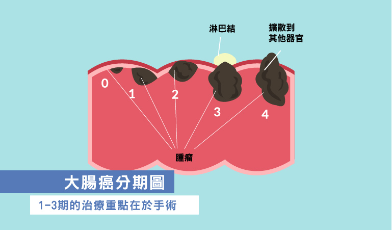 大腸癌分期圖