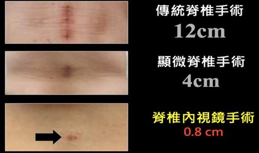 微創脊椎內視鏡手術