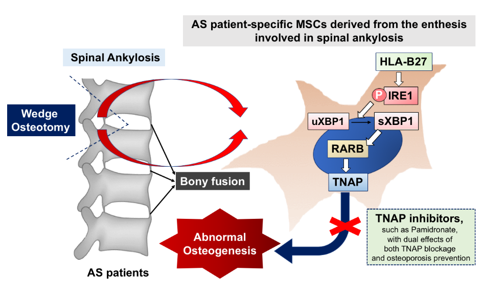 此研究強調HLA-B27介導的sXBP1-RARB-TNAP軸在AS syndesmophyte發病機制中的激活的重要性