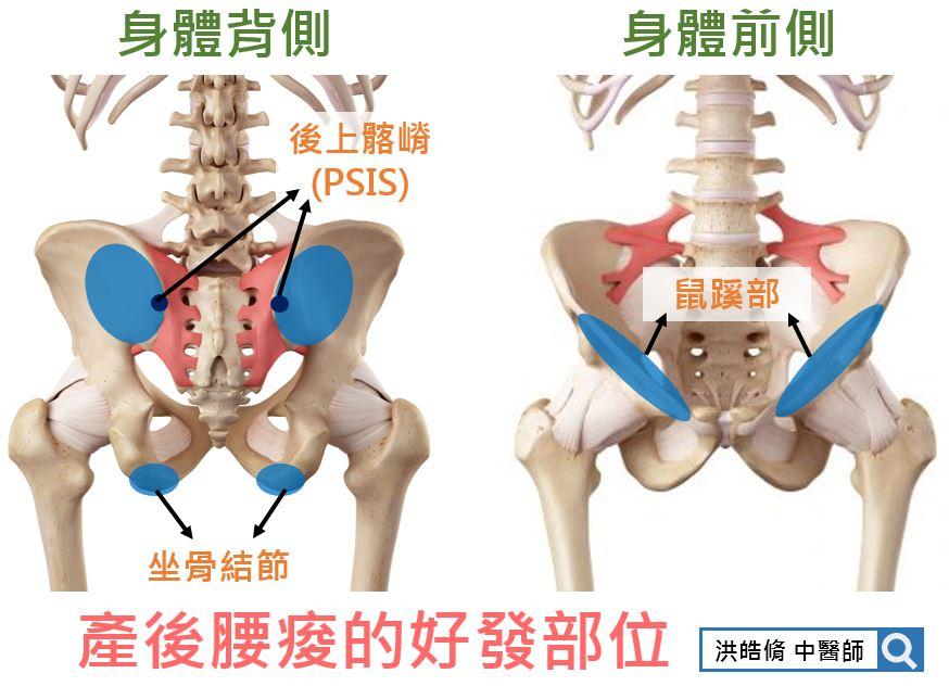 產後腰痠的好發部位
