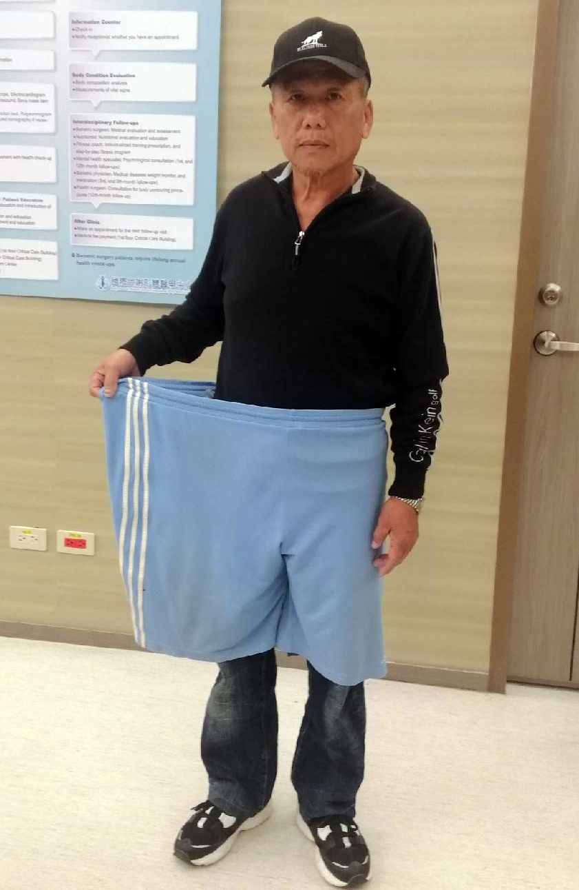 當病態肥胖遇上肝癌肝硬化 | 減重手術改善疾病生活更良好