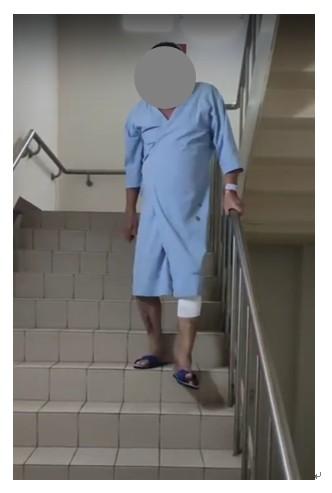 病人於微創關節置換手術後,於隔日出院前已可練習獨立行走及上下樓梯。