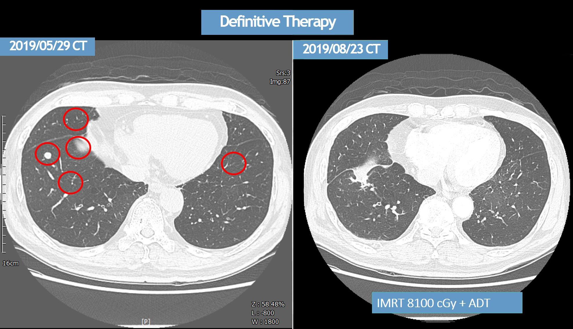 癌症剋星新曙光 多元細胞治療新利器