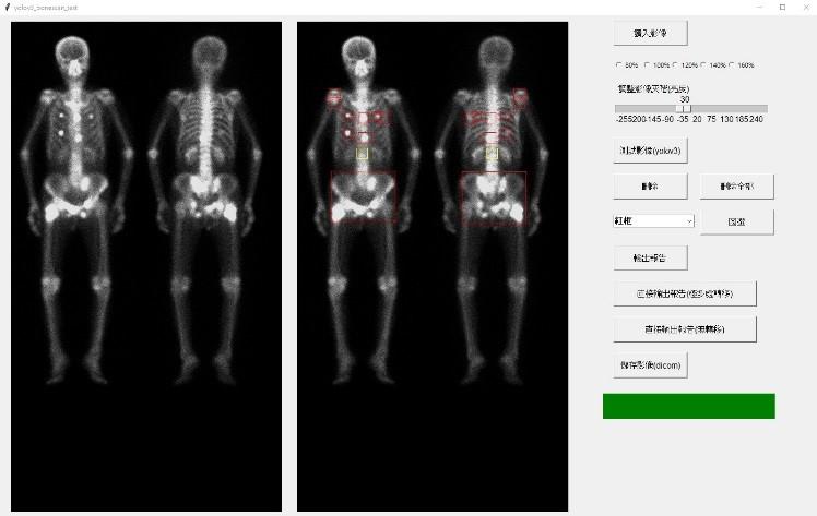 癌症骨轉移人工智慧輔助偵測特色
