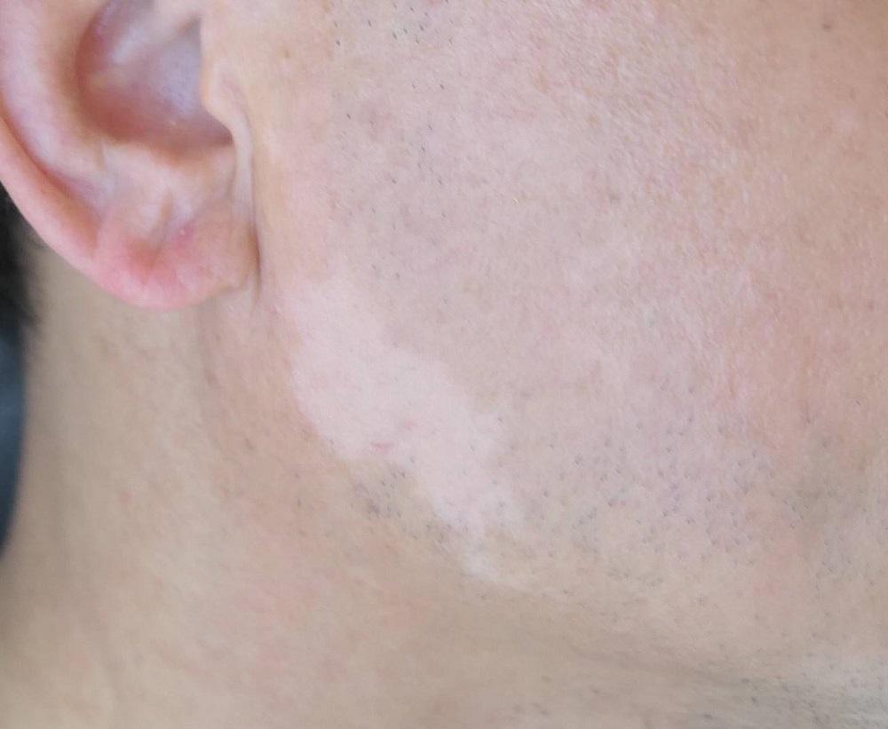 白斑治療 點陣微創表皮移植