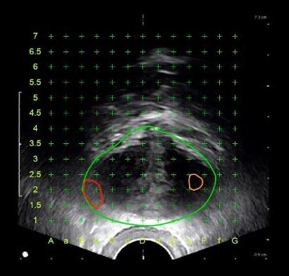 磁振造影與超音波影像融合的圖形,可建構攝護腺左右兩側各有一病灶