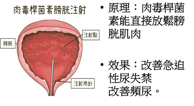 肉毒桿菌素膀胱注射
