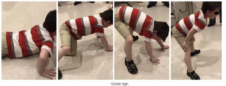 肌肉失養症Gower sign (取材自Braddom's physical medicine &rehabilitation 6th)。林千琳提供。