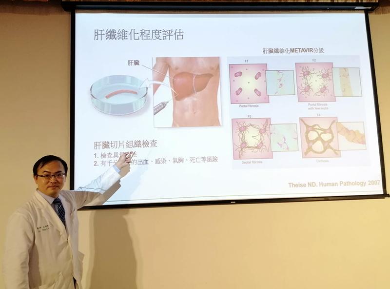 擔心肝硬化又害怕切片檢查 | 非侵入性診斷肝纖維化新技術揚名國際