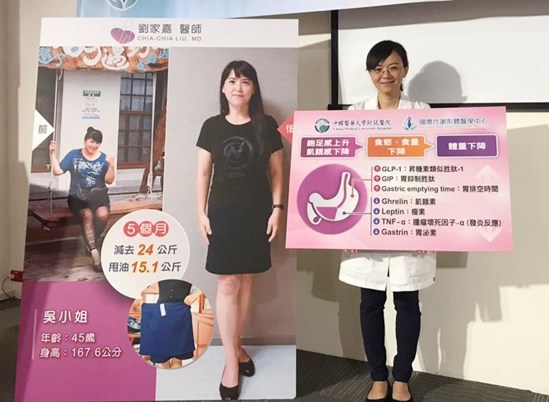 胃鏡減重:胃內肉毒桿菌注射 亞洲人種內科減重的另一項選擇