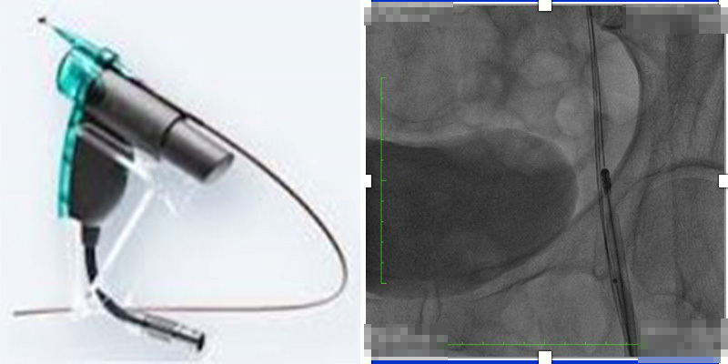 Aspirex機械性靜脈血栓抽吸導管