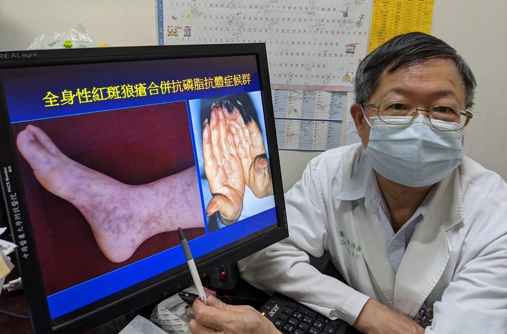 風濕免疫病友施打新冠病毒疫苗