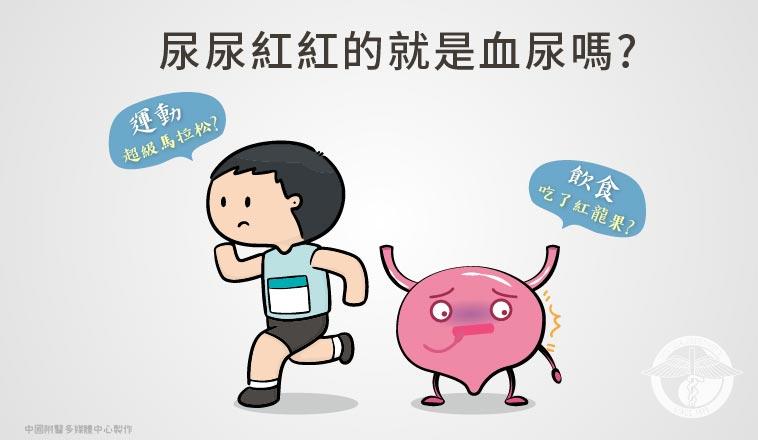 黃志平醫師 | 有時候飲食、太過激烈運動也會影響尿液顏色