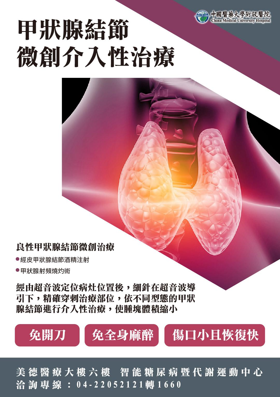 甲狀腺結節介入性微創治療