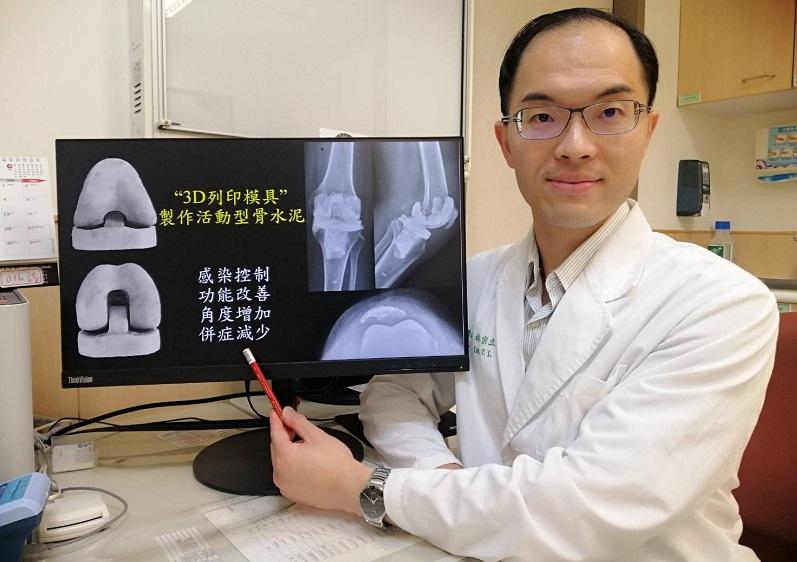 骨科部 人工關節科 林宗立醫師|人工關節感染又化膿 「3D列印模具」術後順利回到工作岡位
