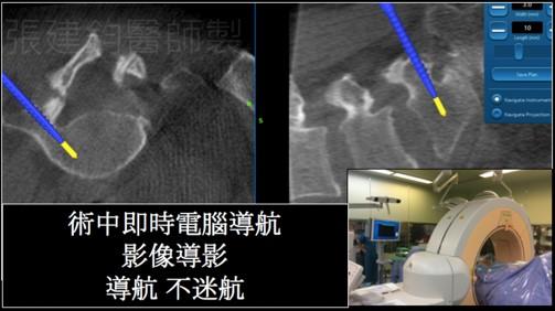 3D電腦導航脊椎手術