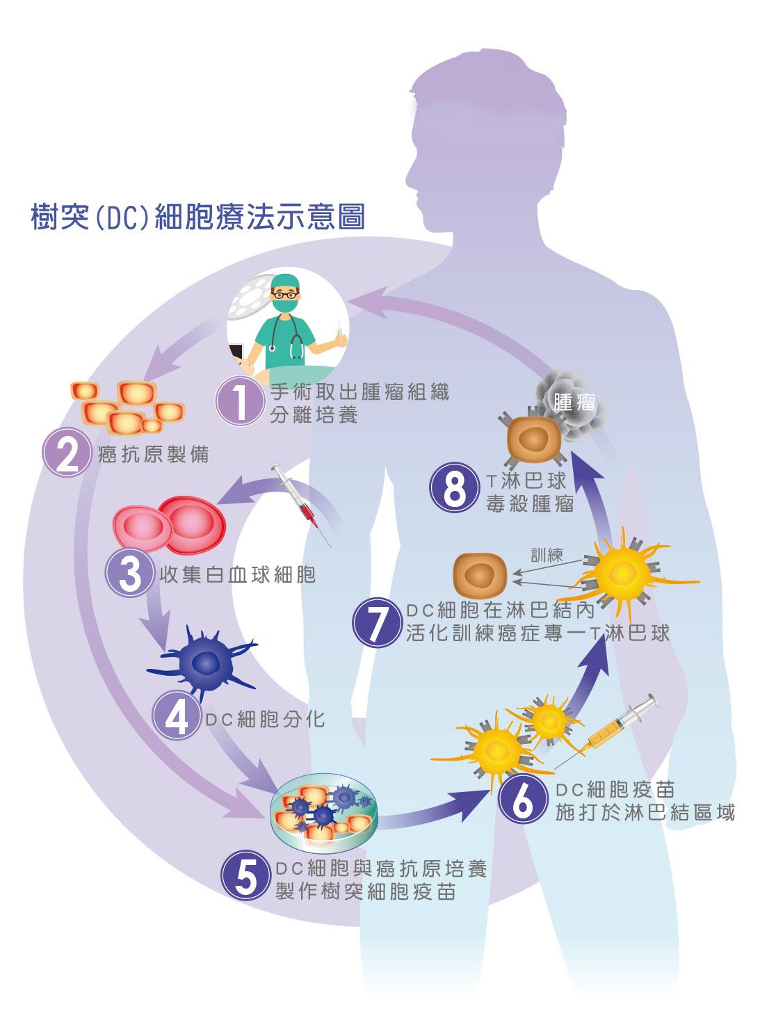 樹突(DC)細胞療法示意圖