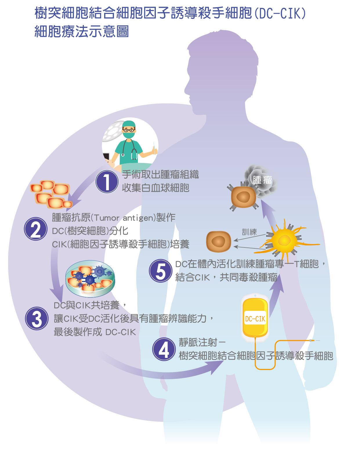 樹突細胞結合細胞因子誘導殺手細胞(DC-CIK) 細胞療法示意圖