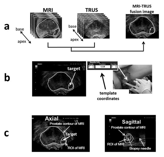 核磁共振與超音波影像融合攝護腺切片