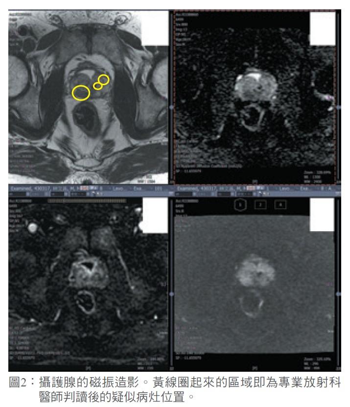 圖2:攝護腺的磁振造影。