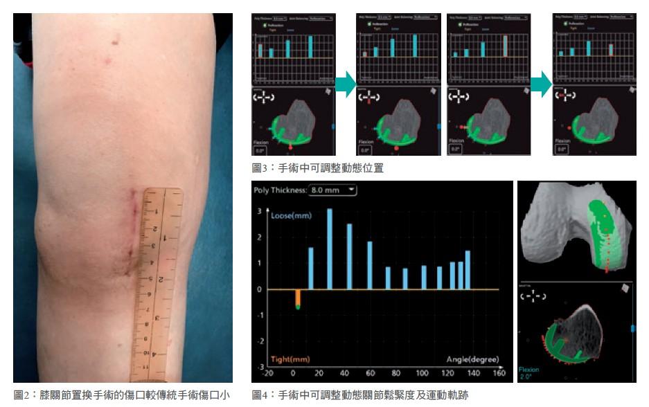 圖2:膝關節置換手術的傷口較傳統手術傷口小