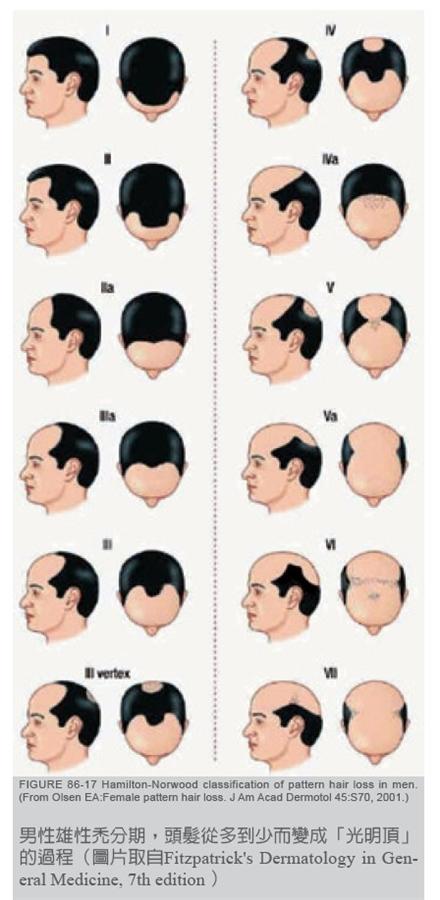 男性雄性禿分期