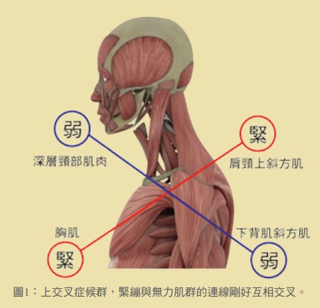 圖1:上交叉症候群,緊繃與無力肌群的連線剛好互相交叉。