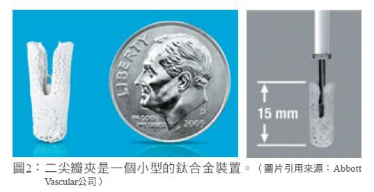 圖2: 二尖瓣夾是一個小型的鈦合金裝置。