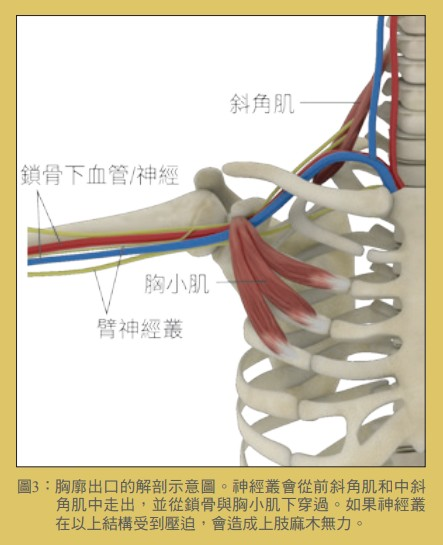 圖3:胸廓出口的解剖示意圖。