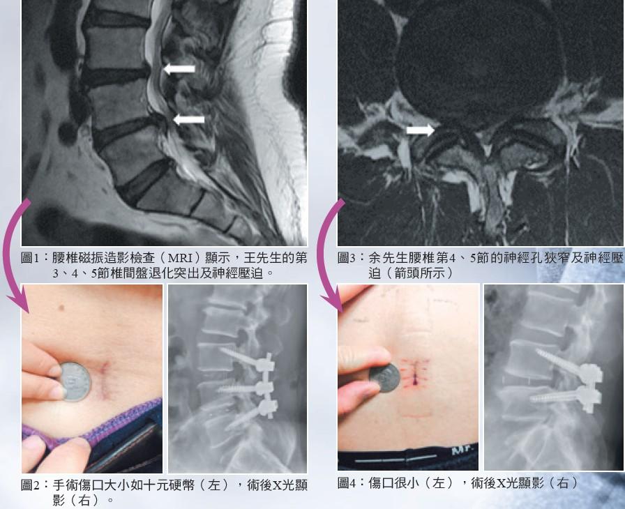 微切腰椎融合手術
