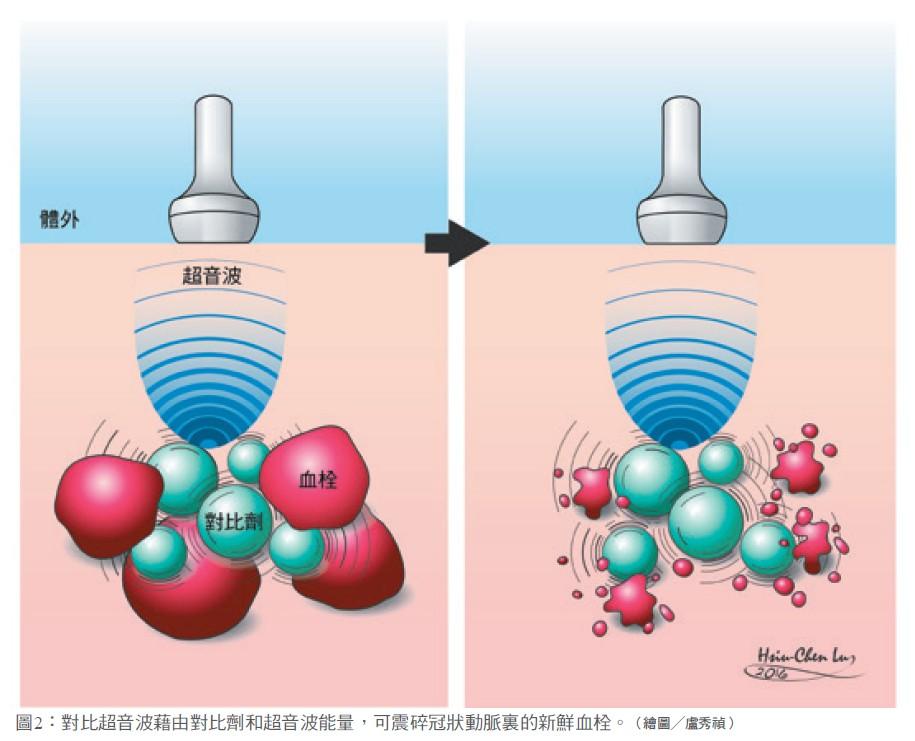 圖2:對比超音波藉由對比劑和超音波能量,可震碎冠狀動脈裏的新鮮血栓。(繪圖╱盧秀禎)