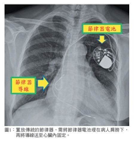 圖1: 置放傳統的節律器,需將節律器電池埋在病人肩膀下,再將導線送至心臟內固定。