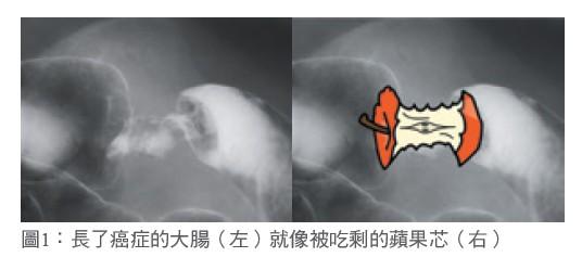 圖1:長了癌症的大腸(左)就像被吃剩的蘋果芯(右)