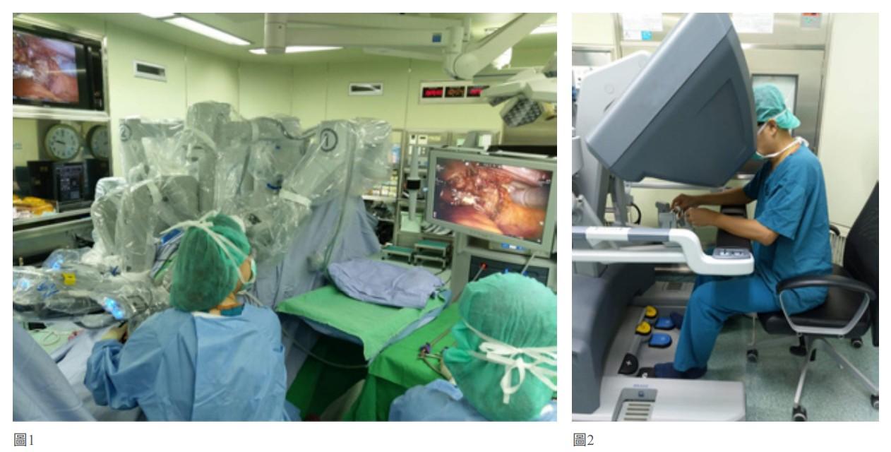 達文西手術除了擁有一般微創手術的優點外,更有超乎人類穩定的靈活機器手臂
