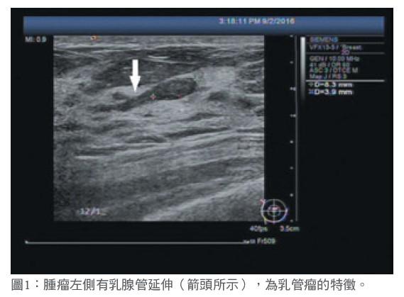 圖1:腫瘤左側有乳腺管延伸(箭頭所示),為乳管瘤的特徵。