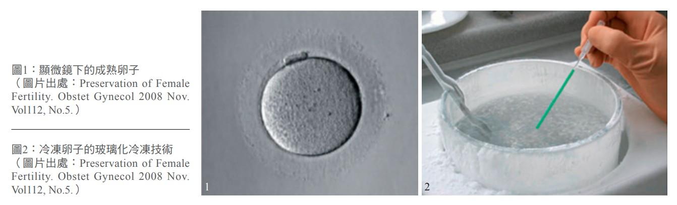 圖1:顯微鏡下的成熟卵子