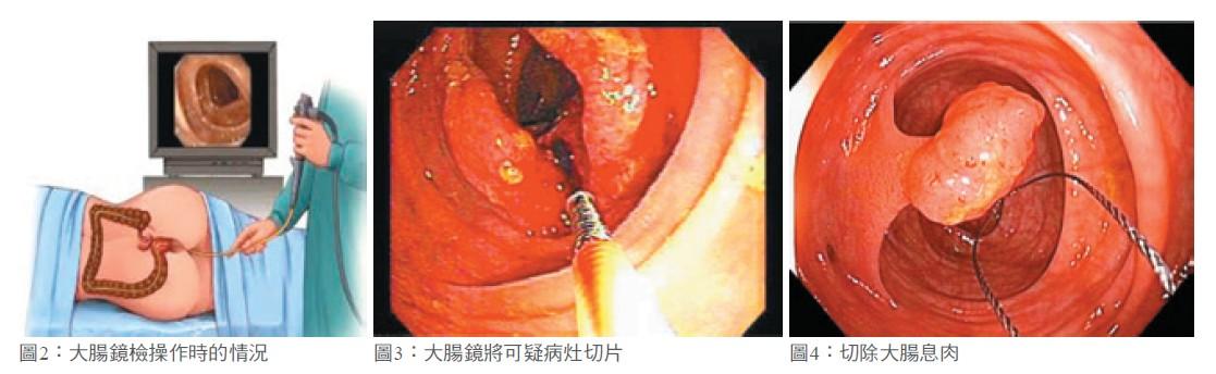 圖2:大腸鏡檢操作時的情況