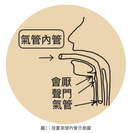 圖2:放置氣管內管示意圖