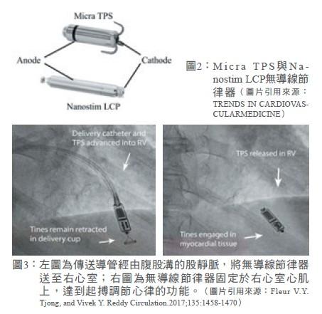 圖2:M icra TPS與Nanostim LCP無導線節律器