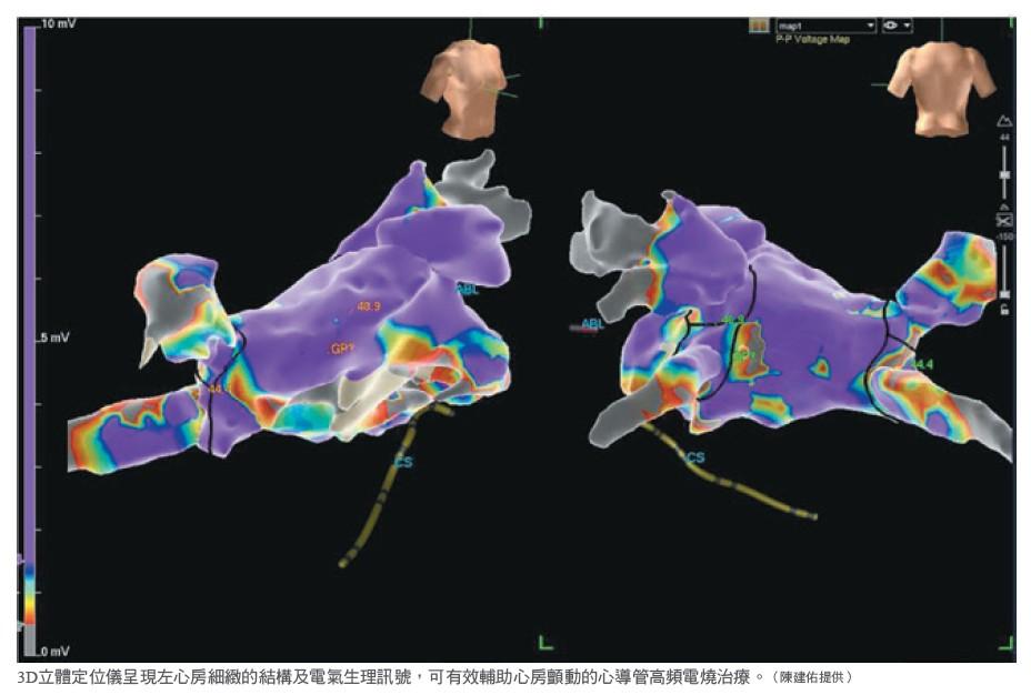 3D立體定位儀呈現左心房細緻的結構及電氣生理訊號,可有效輔助心房顫動的心導管高頻電燒治療。(陳建佑提供)
