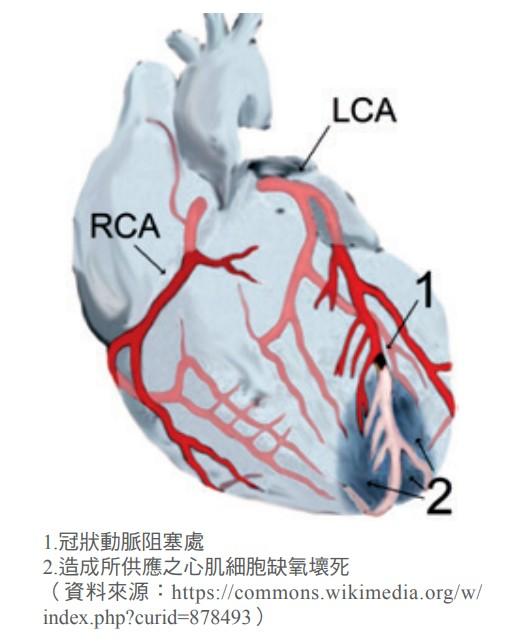 冠狀動脈阻塞處