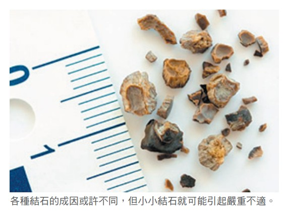 各種結石的成因或許不同,但小小結石就可能引起嚴重不適。