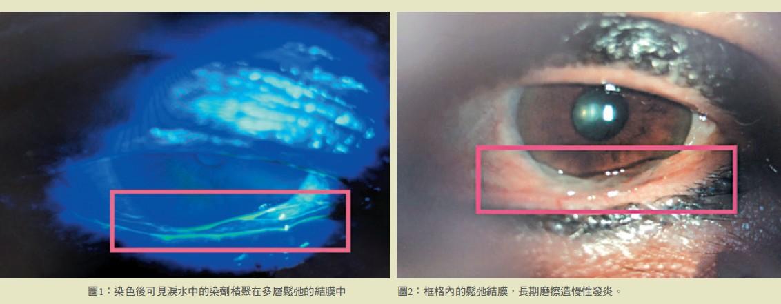 圖1: 染色後可見淚水中的染劑積聚在多層鬆弛的結膜中