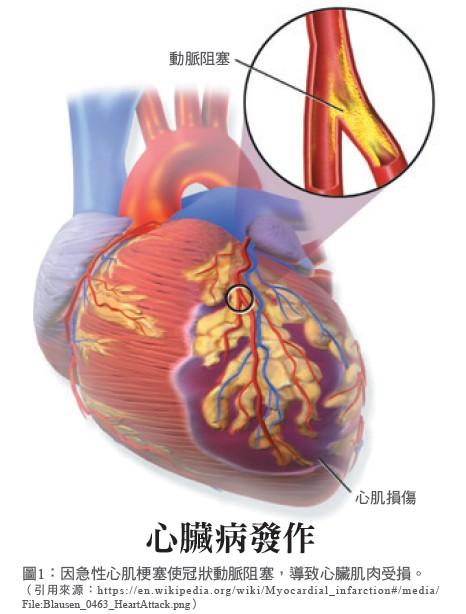 圖1:因急性心肌梗塞使冠狀動脈阻塞,導致心臟肌肉受損。