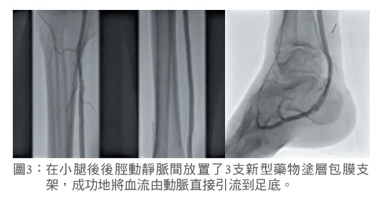 圖3: 在小腿後後脛動靜脈間放置了3支新型藥物塗層包膜支架,成功地將血流由動脈直接引流到足底。