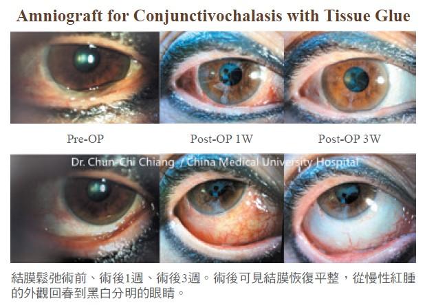 結膜鬆弛術前、術後1週、術後3週。術後可見結膜恢復平整,從慢性紅腫的外觀回春到黑白分明的眼睛。