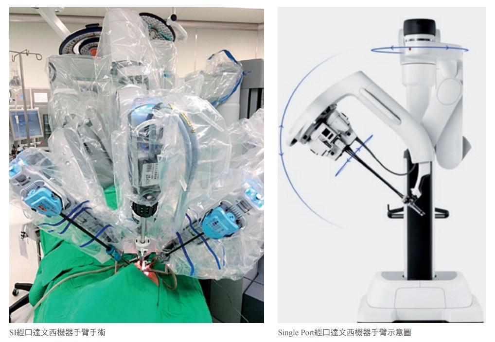 SI經口達文西機器手臂手術